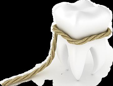 Удаление зубов в Киеве