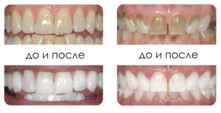 Офисное отбеливание зубов в Filigran