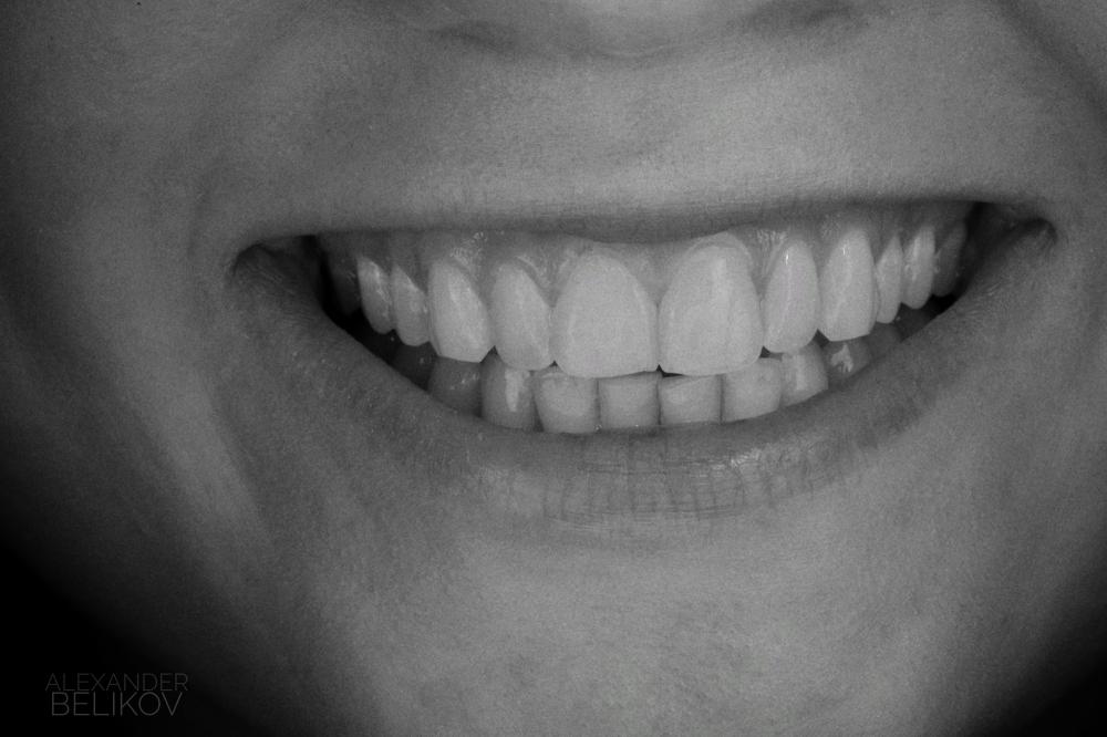 Виниры - для красивой улыбки